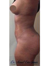 Liposuction - Dr. Manuel Diaz Guzman