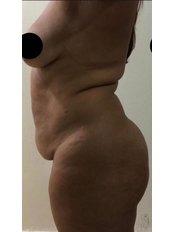Tummy Tuck - Dr. Manuel Diaz Guzman