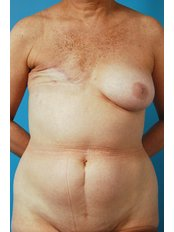 Breast Reconstruction - Cairo Plastic Clinic
