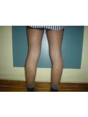 Calf Implants - Cairo Plastic Clinic