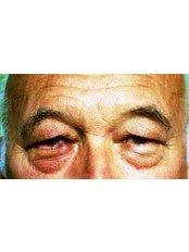 Eyelid Surgery - Cairo Plastic Clinic