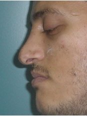 Closed Rhinoplasty - Cairo Plastic Clinic