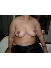 Breast Lift - Cairo Plastic Clinic