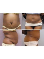 Full Abdominoplasty - Cairo Plastic Clinic