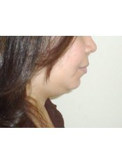 Neck Liposuction - Cairo Plastic Clinic