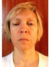 Facelift - Dr. Ashraf Abolfotooh Plastic & Reconstructive Surgery Clinic