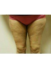 Thigh Liposuction - Dr. Ashraf Abolfotooh Plastic & Reconstructive Surgery Clinic