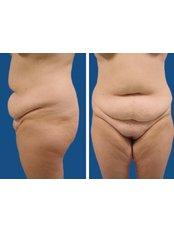 Full Abdominoplasty  - Dr. Ashraf Abolfotooh Plastic & Reconstructive Surgery Clinic
