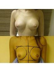 Breast Implants - Dr. Ashraf Abolfotooh Plastic & Reconstructive Surgery Clinic