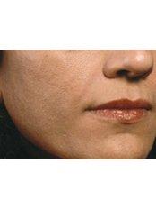 Dermal Fillers - Dr. Ashraf Abolfotooh Plastic & Reconstructive Surgery Clinic
