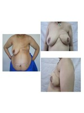 Breast Reconstruction - Dr. Ashraf Abolfotooh Plastic & Reconstructive Surgery Clinic