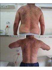 Liposuction - Wahbaclinic