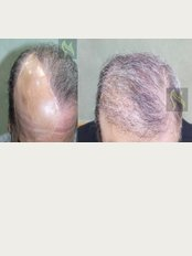 Nour Clinic - Pre and Post Hair transplant - FUE