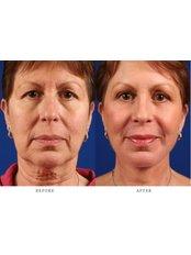 Facelift - Gizele Clinic