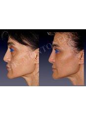 Blepharoplasty - Dr Sebastiano Montoneri-Cosmetic & Plastic Surgery