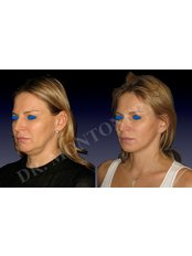 Mini Facelift - Dr Sebastiano Montoneri-Cosmetic & Plastic Surgery