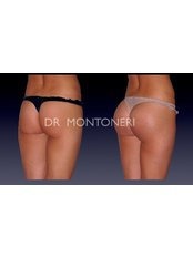 Butt Implants - Dr Sebastiano Montoneri-Cosmetic & Plastic Surgery