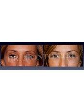Brow Lift - Dr Sebastiano Montoneri-Cosmetic & Plastic Surgery