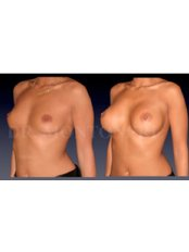 Breast Implants - Dr Sebastiano Montoneri-Cosmetic & Plastic Surgery