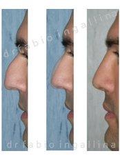 Rhinoplasty - Dr Sebastiano Montoneri-Cosmetic & Plastic Surgery