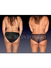 Liposuction - Dr Sebastiano Montoneri-Cosmetic & Plastic Surgery