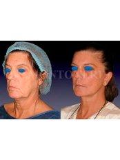 Facelift - Dr Sebastiano Montoneri-Cosmetic & Plastic Surgery