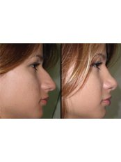 Rhinoplasty Guide (Primary Rhinoplasty) - Exelixis Medical Institute