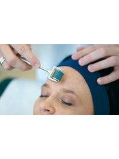 Dermaroller™ - Hatzipieras Plastic Surgery