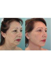 Facelift - Hatzipieras Plastic Surgery