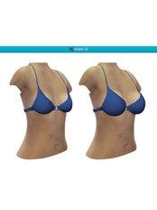 Breast Augmentation - Hatzipieras Plastic Surgery