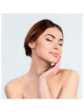 Thread Lift - Hatzipieras Plastic Surgery