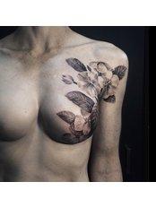 Breast Reconstruction - Hatzipieras Plastic Surgery