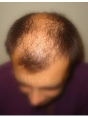 Hair Loss Specialist Consultation - Kallifaneia