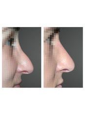 Non-Surgical Nose Job - Dr Ioannis Gkotsikas