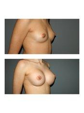 Breast augmentation - Dr Ioannis Gkotsikas