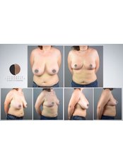 Breast Reduction - Dr.Stam Plastic Surgery