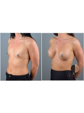 Breast Implants - Breast Augmentation - Dr.Stam Plastic Surgery