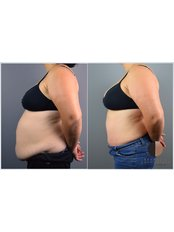 Tummy Tuck - Dr.Stam Plastic Surgery