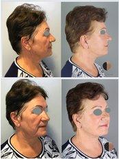 Facelift - Dr.Stam Plastic Surgery