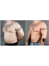 Abdominal Etching - Dr.Stam Plastic Surgery