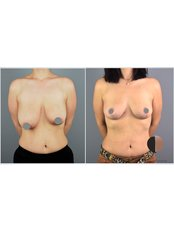 Breast Lift - Dr.Stam Plastic Surgery