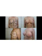 Breast Reconstruction - Imago Plastic Surgery