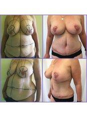 Body Lift - Imago Plastic Surgery
