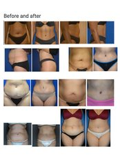Lipoabdominoplasty - Contura Cosmetic Clinic