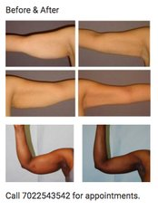 Liposuction - Contura Cosmetic Clinic