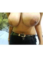 Breast Reduction - MMRV HOSPITAL