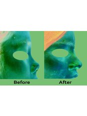 Plastic Surgeon Consultation - Amaze Med Spa  For Awesome you Plastic and Cosmetic Surgery Centre