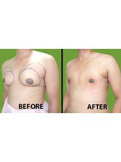 Gynecomastia - Medini Cosmetic Surgery Centre