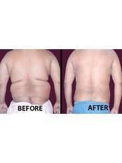 Liposuction - Medini Cosmetic Surgery Centre