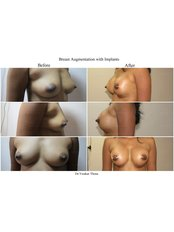 Breast Implants - Revera Cosmetic Surgery & LASER Centre